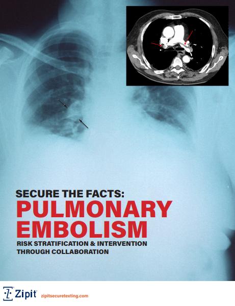 Pulmonary Embolism Risk Stratification through Collaboration